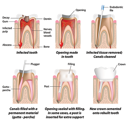 Root Canal Therapt